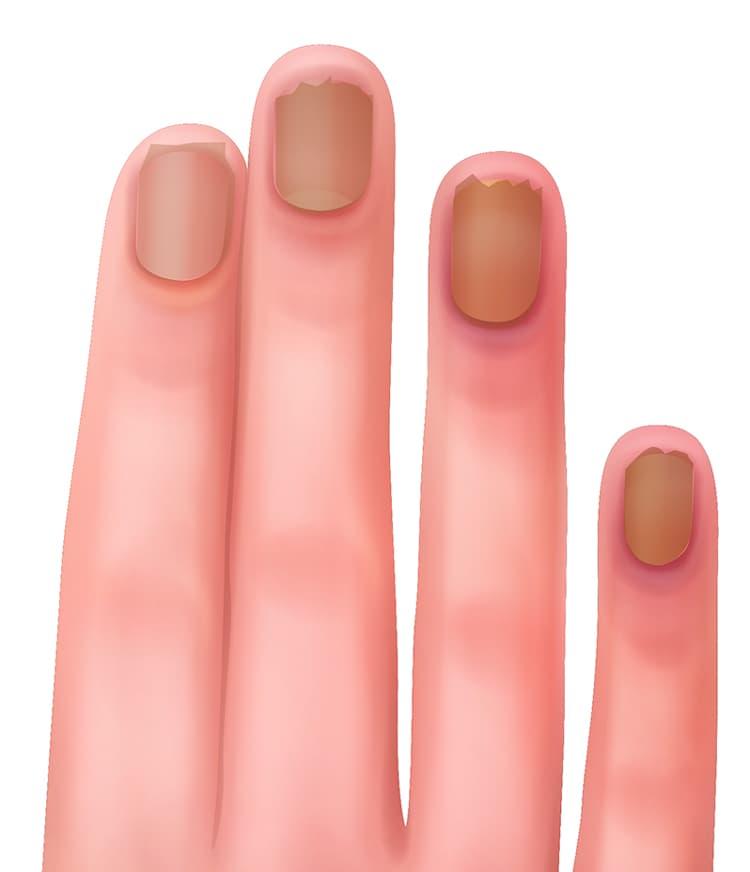 シリカ不足で二枚爪や薄い爪に